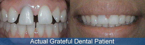 photo of an actual grateful dental patient before and after