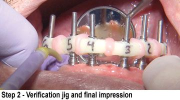 BruxZir Full-Arch Implant Prosthesis- Step 2 Verification jig and final impression