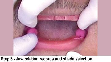 BruxZir Full-Arch Implant Prosthesis- Step 3 Jaw relation records and shade selection