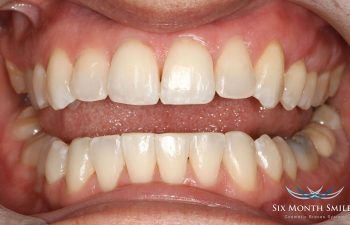 teeth after Six Month Braces treatment