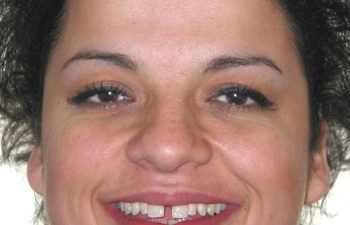 female patient before Six Month Braces treatment Marietta,GA