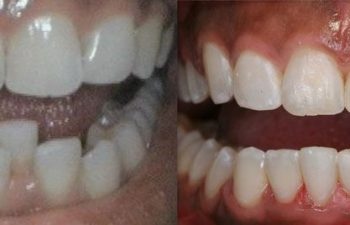 Patient's Teeth Before and After Having Crooked Teeth Straightened Marietta, GA
