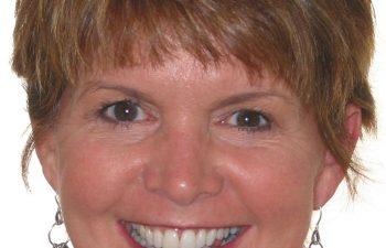 female patient after Six Month Braces treatment Marietta,GA