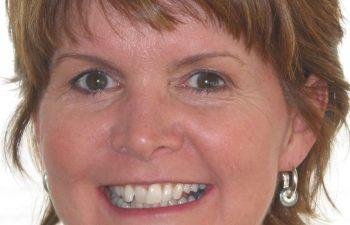 female patient before Six Month Braces treatment Marietta,GA