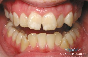 teeth before Six Month Braces treatment