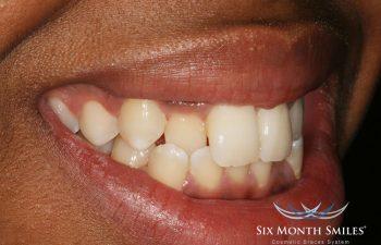 teeth before Six Month Braces treatment