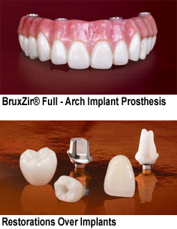 BruxZir Full-Arch Implant Prosthesis and single implants