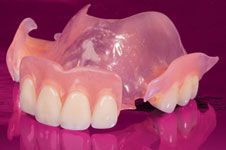 flexible partial dentures