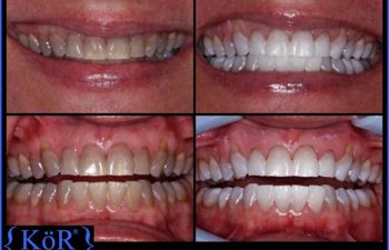 teeth before and after Kor Whitening treatment