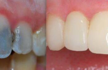 Patient's Teeth Before and After Having Dental Crowns Applied Marietta, GA