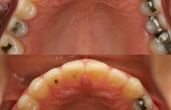 Patient's teeth before and after gap correction Marietta, GA