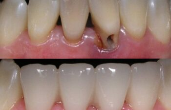 Patient's teeth before and after having dental bridge applied Marietta,GA