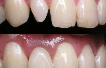 Patient's Teeth Before and After Veneers Marietta, GA