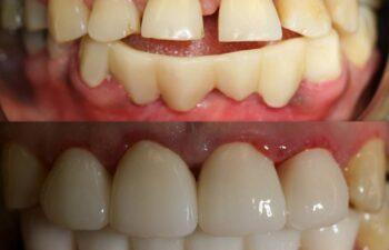 Patient's teeth before and after having dental bridge applied Marietta,GA