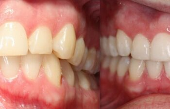 Patient's Teeth Before and After Orthodontic Treatment Marietta, GA